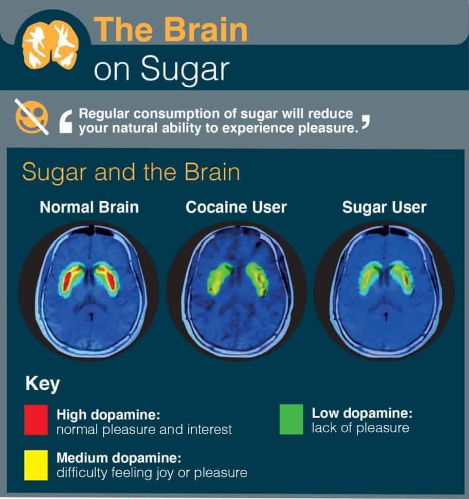 The Brain on Sugar